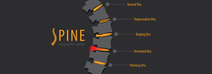 Spinal Wellness Tips