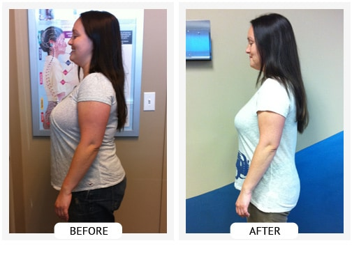 Chiropractic Wilmington DE Before and After Results ang