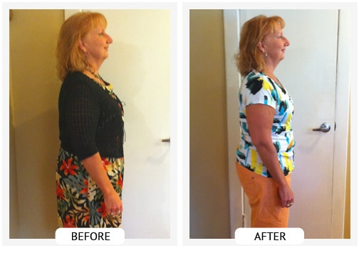 Chiropractic Wilmington DE Before and After Results barb