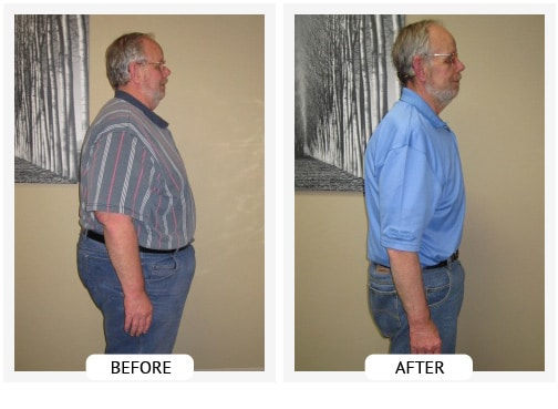 Chiropractic Wilmington DE Before and After Results