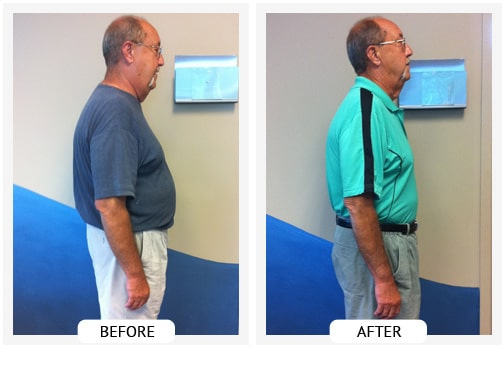 Chiropractic Wilmington DE Before and After Results dan_sm