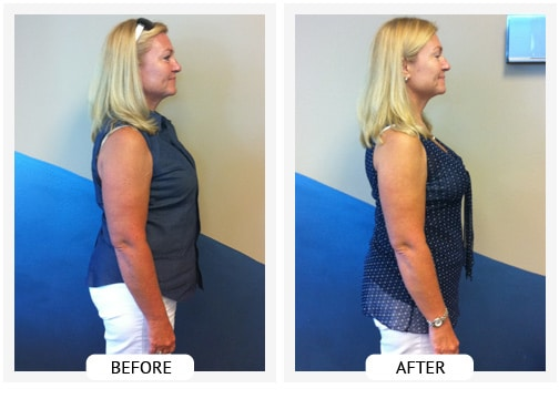 Chiropractic Wilmington DE Before and After Results jeanie