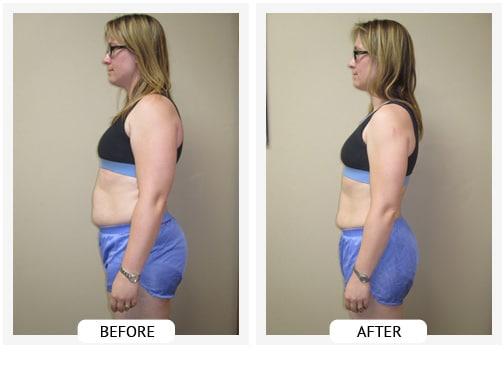 Chiropractic Wilmington DE Before and After Results kristen