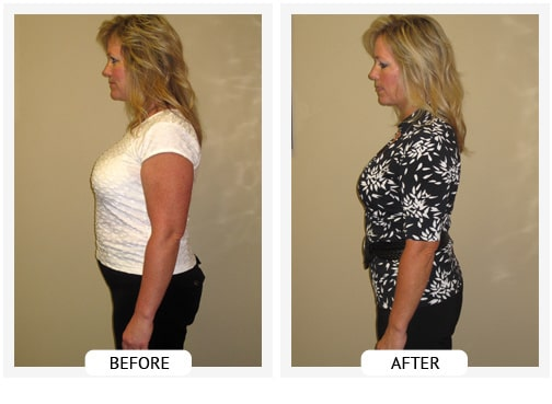 Chiropractic Wilmington DE Before and After Results lana