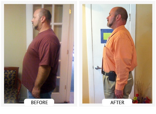 Chiropractic Wilmington DE Before and After Results roland
