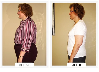 Chiropractic Wilmington DE Before and After Results Sherry